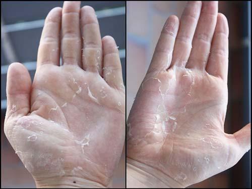 Шелушится кожа на руках