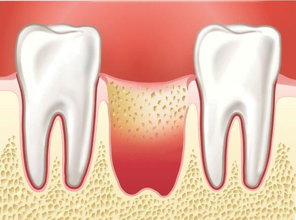 Не зарастает лунка после удаления зуба