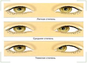 Амблиопия или ленивый глаз, симптомы, лечение