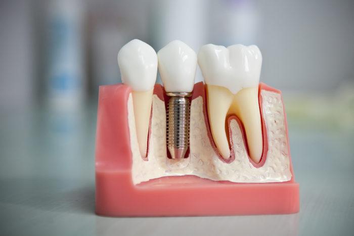 Как происходит имплантация зубов?