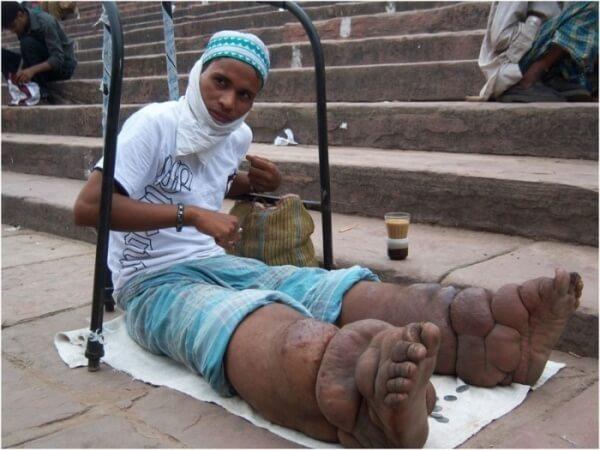 опухоль на ногах