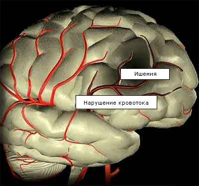 Отек мозга: причины и последствия его развития