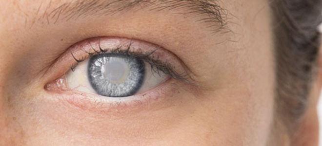Как вылечить катаракту народными средствами: советы, рецепты - Здоровое Око