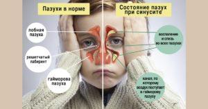 Сравнение пазух в норме и при синусите у детей