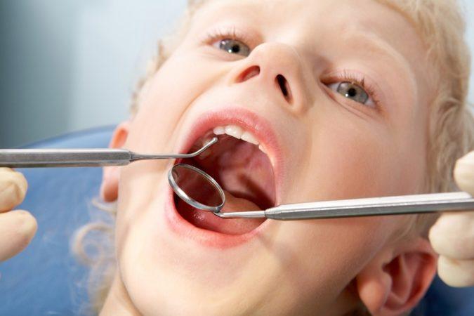Аллергический стоматит у взрослых и детей