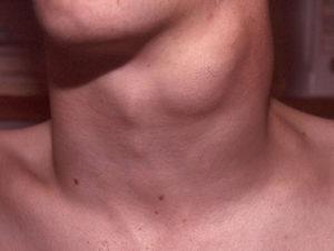 рак щитовидной железв