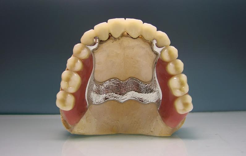 Бюгельный протез на верхнюю челюсть