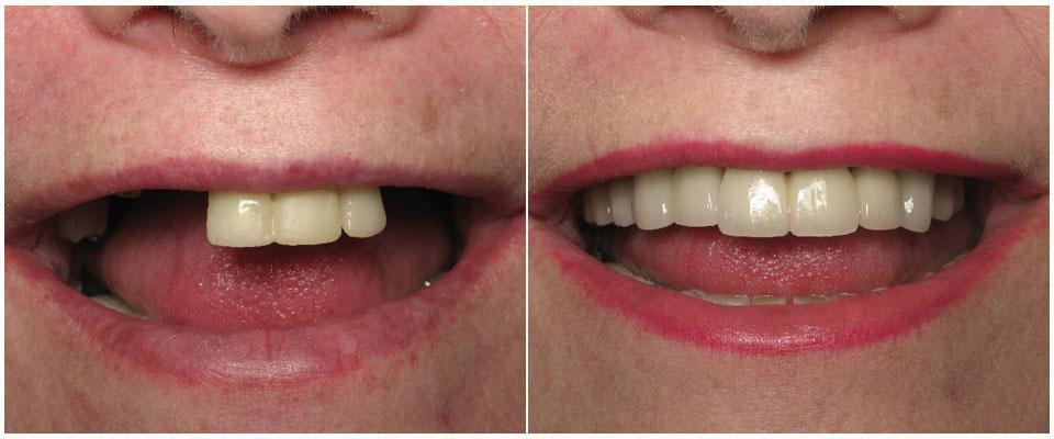 Что такое зубной мост?