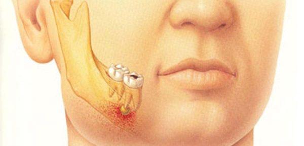 Что такое периостит нижней челюсти