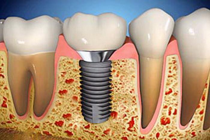 имплант зуб