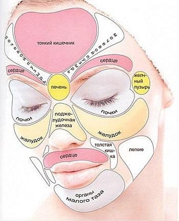 Причины появления прыщей по зонам лица