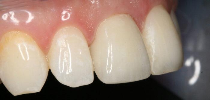 Что представляют собой керамические зубы?