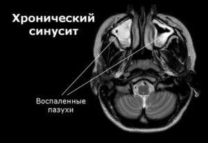 Хронический синусит на снимке