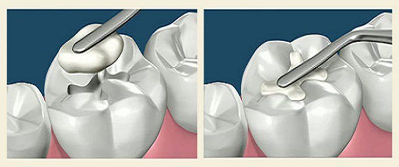 Как запломбировать зуб в домашних условиях
