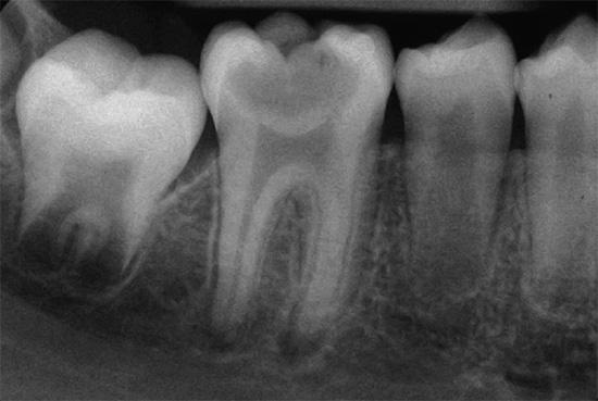 Пульпит зуба: что это такое