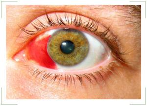 Субконъюнктивальное кровоизлияние