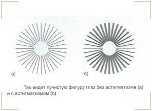 Гиперметропический астигматизм у детей