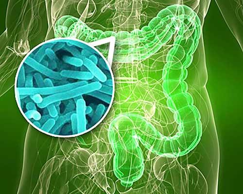 Дисбактеририоз кишечника