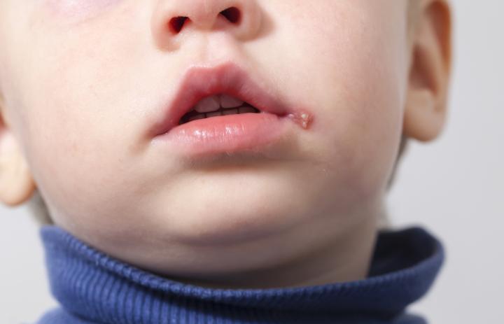 Гер на губах: лечение народными средствами быстро