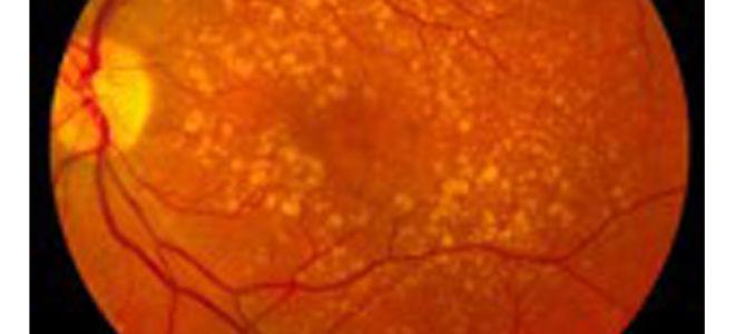 Ангиосклероз сетчатки глаза