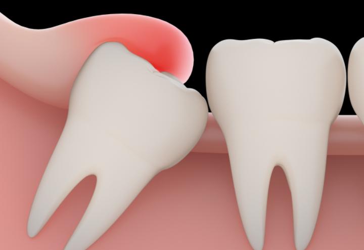 Зуб мудрости лечить или удалять
