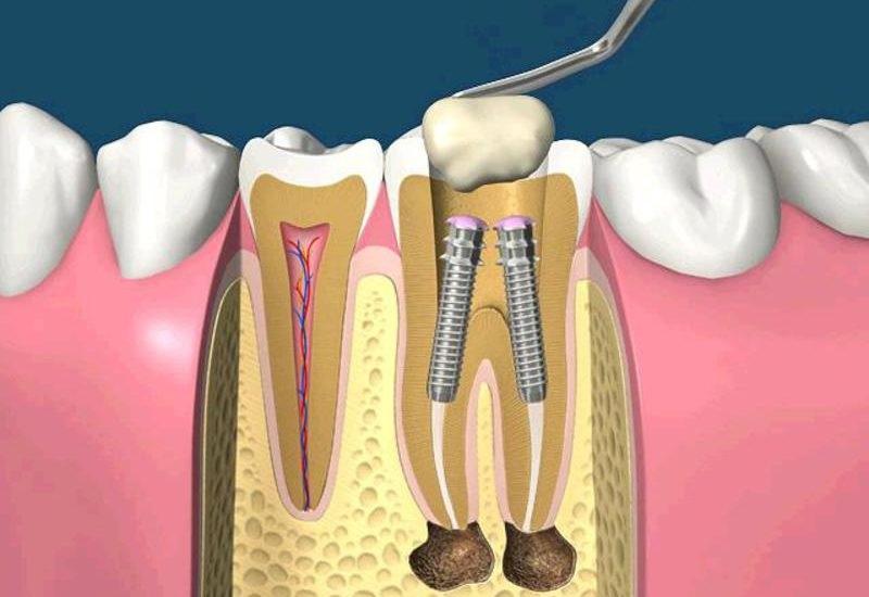 После установки штифта болит зуб