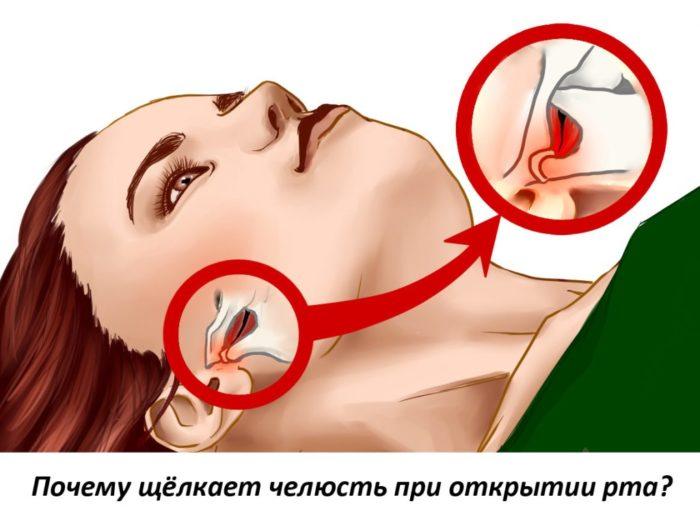 При открытии рта щелкает челюсть
