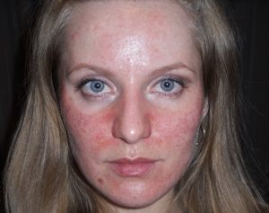 Опасные составляющие масок для лица. Осторожно! – Они вредят коже при неправильном применении