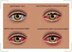 Чешутся уголки глаз