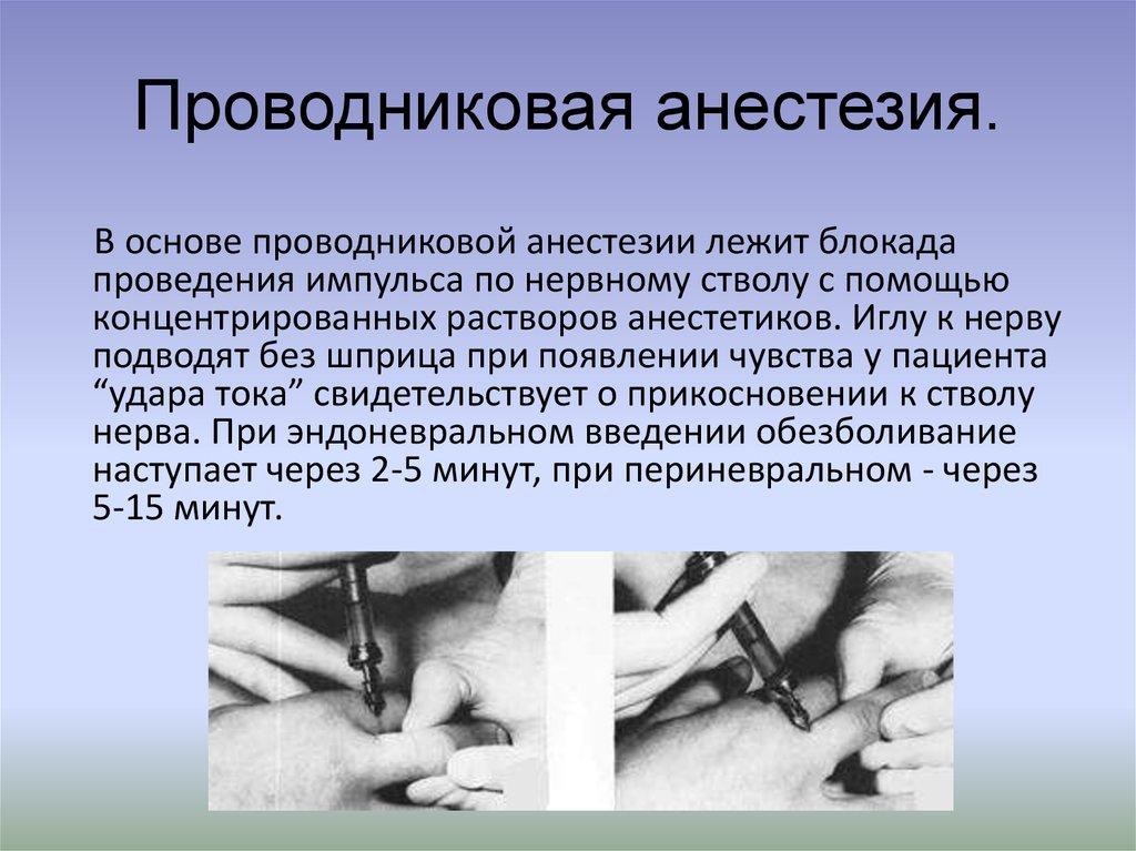 Проводниковая анестезия в стоматологии