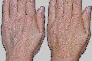 варикоз на руках лечение