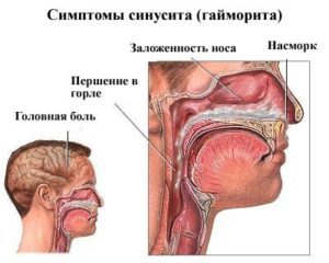 Что такое гнойный синусит, его причины, симптомы и лечение