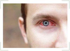 Эписклерит глаза