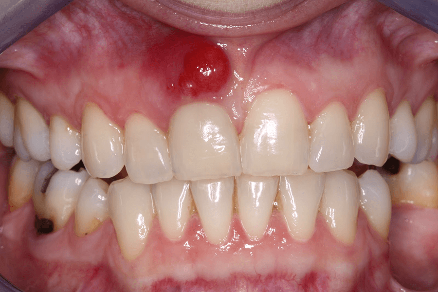 Апикальный периодонтит