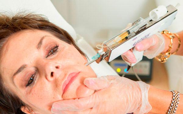 мезотерапия в возрасте