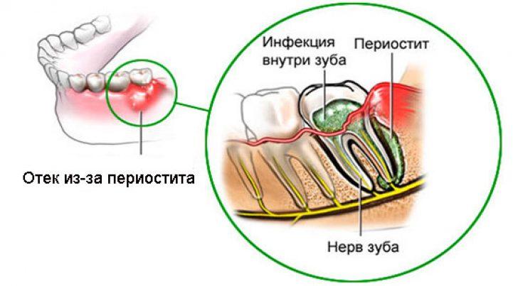 Сколько заживает десна после удаления зуба