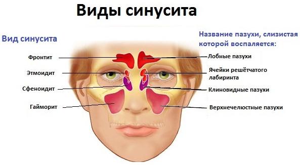 Виды синуситов