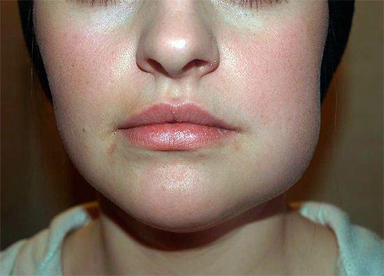 Что делать при флюсе, советы стоматологов о том, как лечить флюс на щеке в домашних условиях