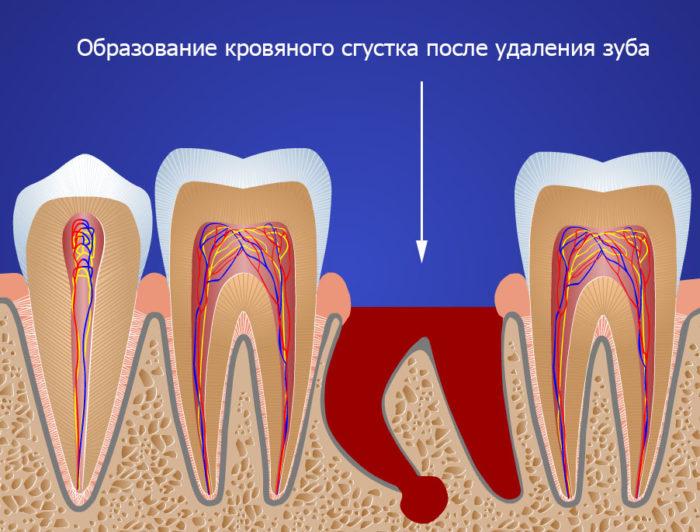 После удаления зуба мудрости опухла щека