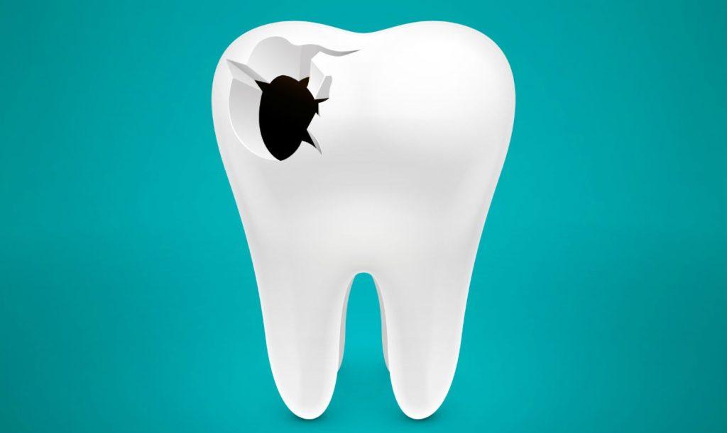 Что такое перфорация зуба: симптомы и лечение