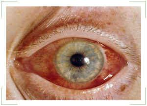 Можно ли вылечить глаукому?
