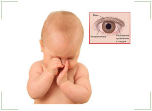 Заразен ли конъюнктивит у детей