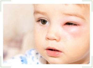 Глазные капли от конъюнктивита для детей