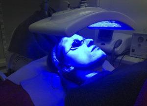 Лечение прыщей ультрафиолетом