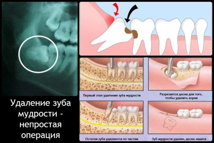 Сколько заживает десна после удаления зуба мудрости?