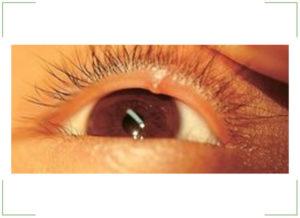 Прозрачный пузырек на глазу (на веке глаза)