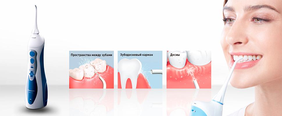 Ирригатор полости рта: какой лучше выбрать
