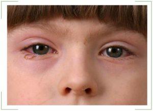 Как долго лечится конъюнктивит у взрослых и детей