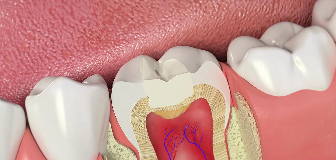 Как пломбируют зубы и больно ли это? Технологий и материалы