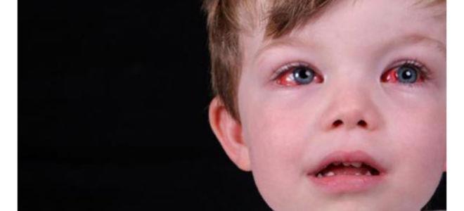 Лечение конъюнктивита у детей в домашних условиях